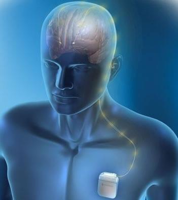 Neuroestimulação Doença de Parkinson