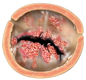 Endocardite Bacteriana