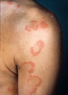 Eritema Marginatum Febre Reumática