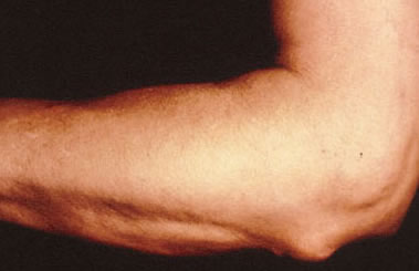 Nódulos Subcutâneos na Febre Reumática